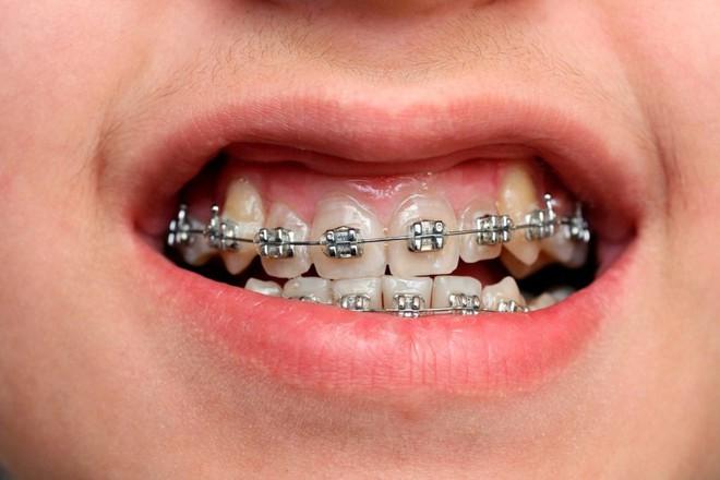 Niềng răng 30 triệu với 100 triệu: khác biệt thế nào, có phải càng đắt càng hiệu quả? - ảnh 2