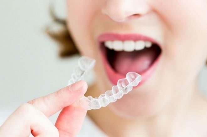 Niềng răng 30 triệu với 100 triệu: khác biệt thế nào, có phải càng đắt càng hiệu quả? - ảnh 4