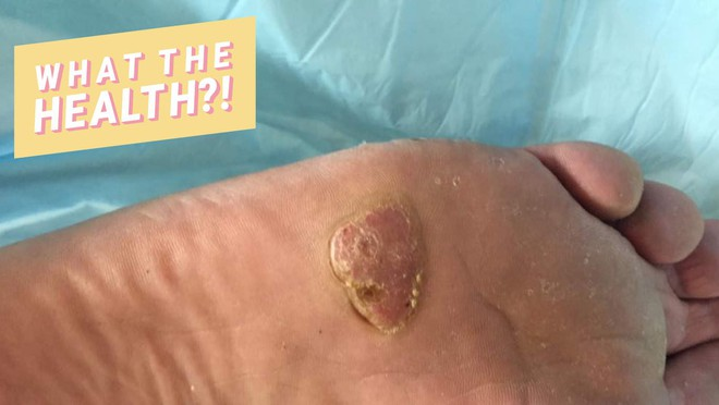 Bệnh ung thư da có thể xuất phát từ nốt mụn cóc ở nơi mà bạn chẳng ngờ tới - Ảnh 1.