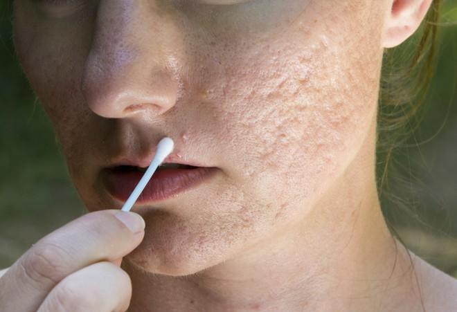 Kem chống nắng giả tràn lan, bạn nên cẩn thận kẻo rước phải hàng tá thứ bệnh khi dùng - ảnh 4