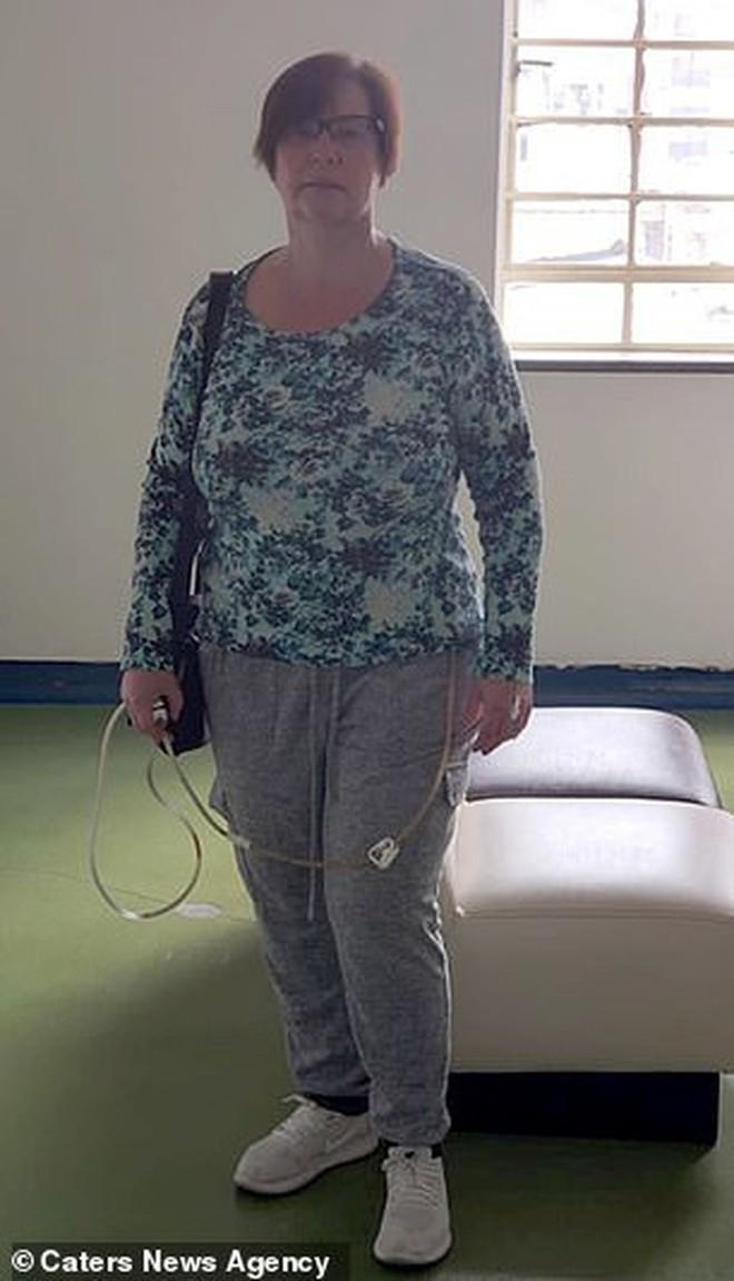 Bỏ ra gần 100 triệu để đi hút mỡ, người phụ nữ gặp biến chứng khiến da bụng bị thối đen - ảnh 2