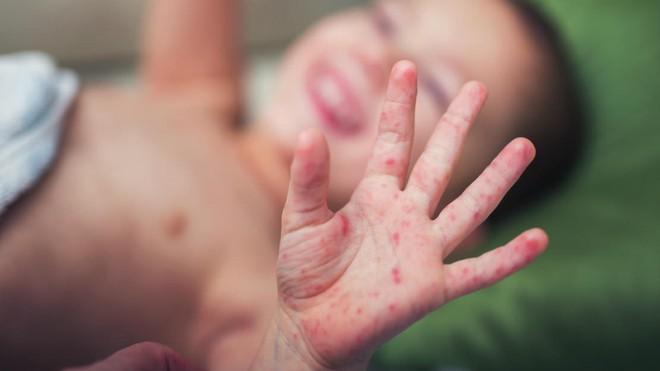 Bộ trưởng Bộ Y tế: có 3 loại bệnh gia tăng trong mùa hè là sốt xuất huyết, tay chân miệng và viêm não Nhật Bản - Ảnh 4.