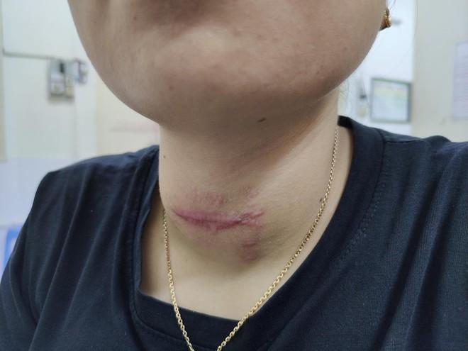 Tự chữa bệnh về tuyến giáp bằng phương pháp thầy lang, cô gái Hải Phòng bị nhiễm trùng nghiêm trọng vùng cổ - ảnh 2