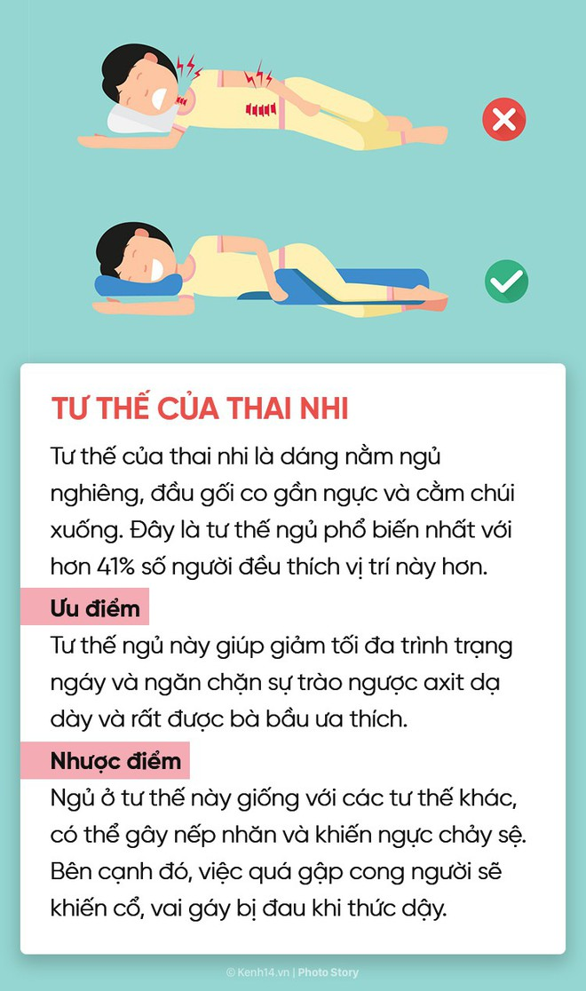 Điểm danh 6 tư thế ngủ quen thuộc để chọn riêng cho mình phương án phù hợp nhất - ảnh 4