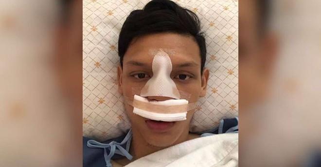Sao Thái từng đấm Đình Trọng bị đối thủ thúc cùi chỏ làm vỡ mũi ngay trên sân - ảnh 1