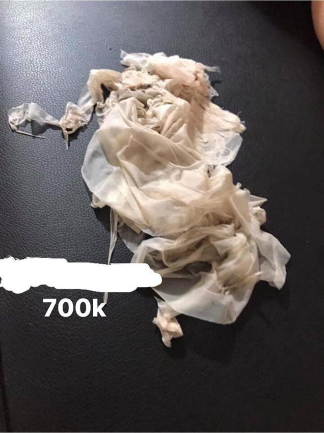 Lột da sinh học: Phương pháp làm trắng cấp tốc được quảng cáo thần kỳ nhưng ẩn sau là đầy rẫy nguy hại - ảnh 6