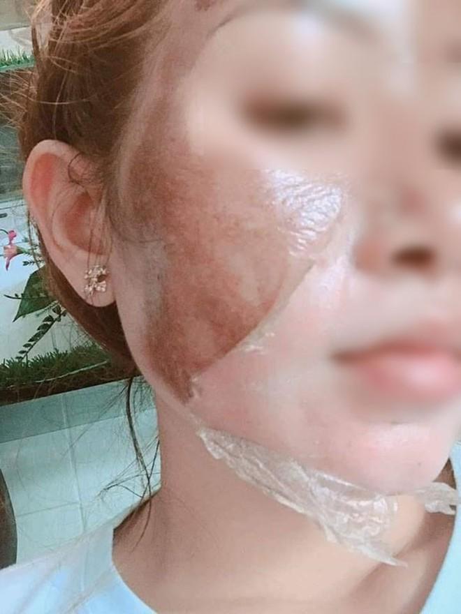 Lột da sinh học: Phương pháp làm trắng cấp tốc được quảng cáo thần kỳ nhưng ẩn sau là đầy rẫy nguy hại - ảnh 8