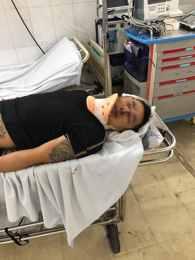 Người đàn ông bị đánh nhập viện khi cùng vợ tới công ty Alibaba khiếu nại việc mua bán đất - ảnh 1