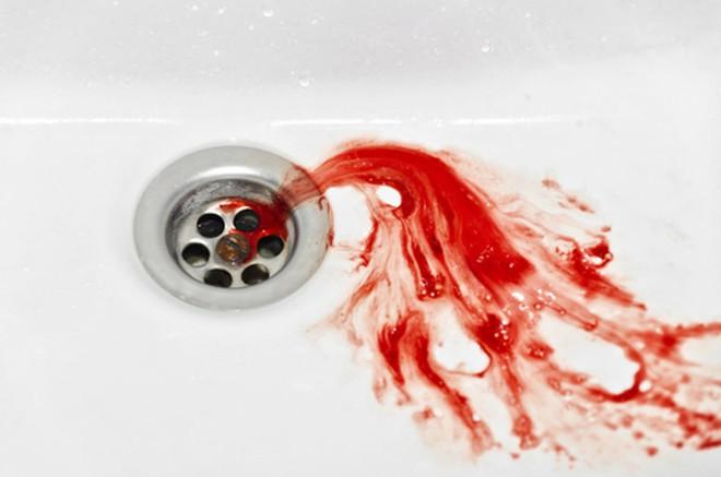 Cô gái 26 tuổi nôn ra gần 200ml máu tươi, nguyên nhân bắt nguồn từ lối sống quen thuộc - ảnh 1