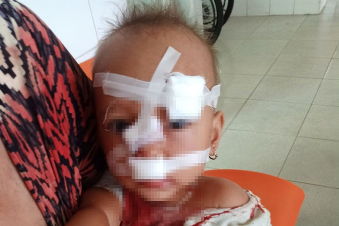 Bố mẹ cãi nhau, bé gái 2 tuổi nhập viện, khâu 12 mũi trên mặt - ảnh 2