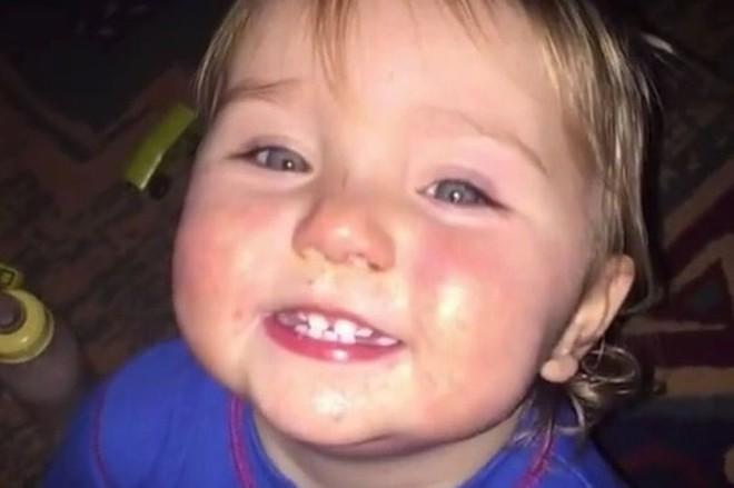 Ngắm hình chụp con gái, mẹ bàng hoàng phát hiện dấu hiệu lạ ở đôi mắt, đi khám mới biết con mắc bệnh ung thư - ảnh 3