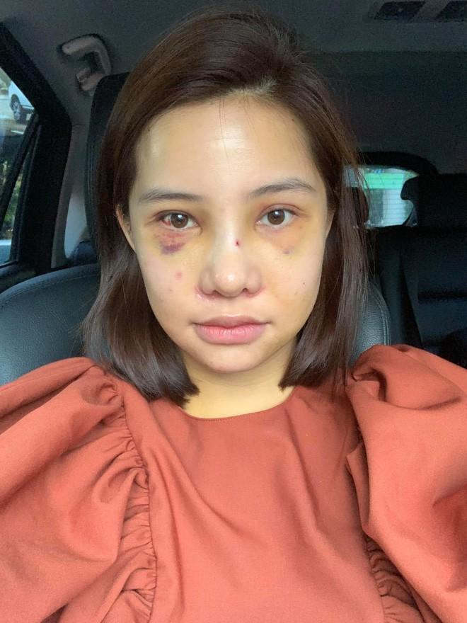 10 năm hành trình nhan sắc của Lưu Đê Ly: Từ cô gái cằm thô, mũi thấp đến nhan sắc sau 6 ca phẫu thuật thẩm mỹ ở Hàn được khen tới tấp - ảnh 19