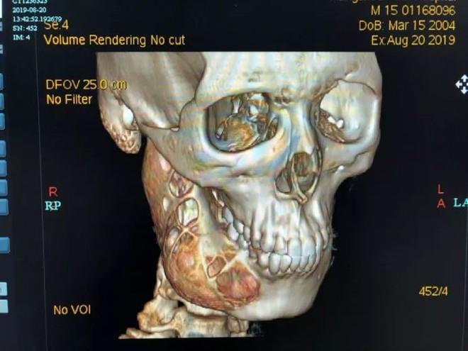 Chủ quan trong việc chăm sóc răng miệng, cậu bé 15 tuổi đi khám mới biết xương hàm phải bị ăn mòn một nửa - ảnh 1