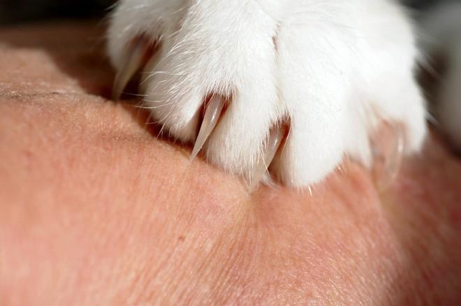 Bị mèo hoang cào: người phụ nữ nhiễm 2 loại vi khuẩn ăn thịt người phải cắt bỏ một ngón tay - Ảnh 2.