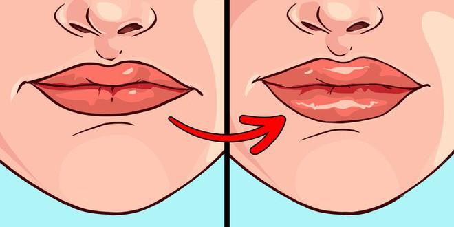 8 điều mà đôi môi đang ngầm cảnh báo sức khỏe của bạn không ổn chút nào - ảnh 7