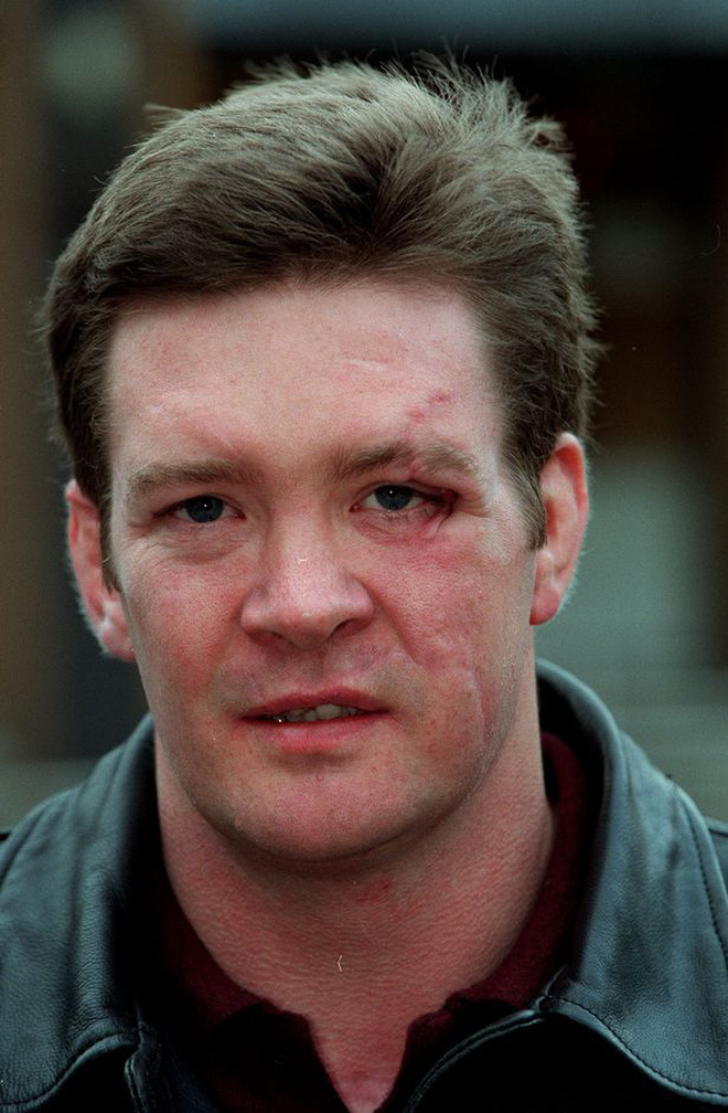 Người duy nhất sống sót trong tai nạn thảm khốc của Công nương Diana: Phải phẫu thuật khuôn mặt, bị kiện tụng và 'thuyết âm mưu' bủa vây hơn 2 thập kỷ - ảnh 8