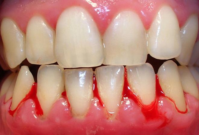 Nếu răng của bạn xuất hiện từ 1 đến 6 triệu chứng sau đây thì bạn cần đi kiểm tra răng càng sớm càng tốt - ảnh 3