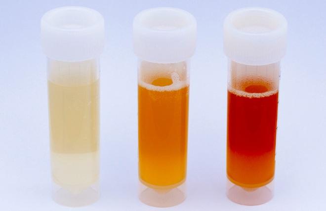 Lần đầu tiên bạn đi tiểu vào buổi sáng nếu có 1 trong 3 triệu chứng sau thì hãy đi khám thận ngay - ảnh 3