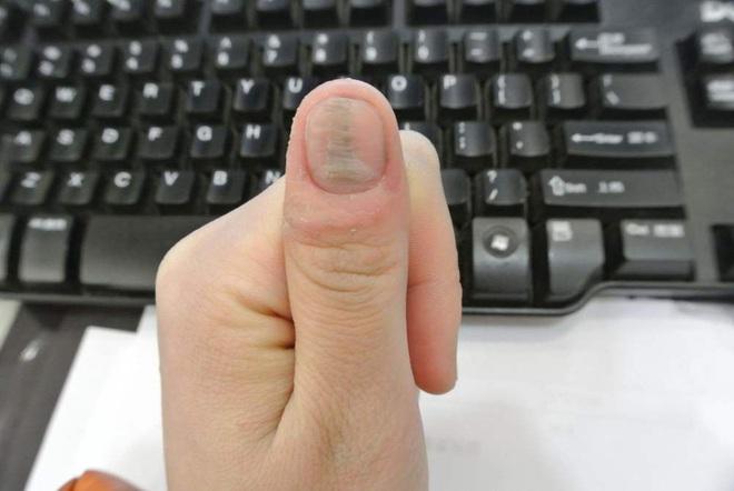 3 biểu hiện ở ngón tay cho thấy bạn đang bị xơ gan - ảnh 1