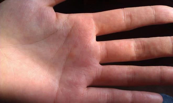 3 biểu hiện ở ngón tay cho thấy bạn đang bị xơ gan - ảnh 2
