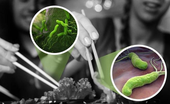Loại vi khuẩn gây loét dạ dày từng được WHO xếp vào nhóm gây ung thư số 1: Có 3 biểu hiện để nhận biết ngay từ sớm - Ảnh 1.