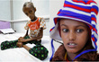 Cô gái Yemen 18 tuổi với thân hình còi cọc đến mức khó tin đã có thể mỉm cười trở lại