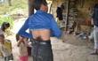 Người mọc đuôi ở Hà Giang: Vừa cắt đuôi thì lăn ra... ốm