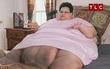 Nặng 340kg, người phụ nữ bị lở loét da vì chỉ nằm một chỗ