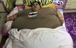 Cô gái to bằng cái giường nặng nửa tấn qua đời vì quá béo