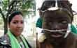 Vợ bị chồng tạt axit cháy xém mặt, mù mắt vì muốn tự đi làm kiếm tiền nuôi con
