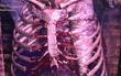 Hy hữu: Phát hiện vỏ chai thủy tinh chui tọt trong lồng ngực một người đàn ông ở Quảng Nam
