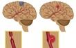 Đột quỵ não ngày càng trẻ hóa chỉ vì 6 nguyên nhân người trẻ nào cũng mắc phải