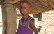 Chàng trai 21 tuổi nặng 7kg bị nhốt trong hình hài của cụ già trăm tuổi