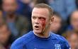 Rooney rách mắt, máu chảy thành dòng trên khuôn mặt