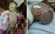 Mẹ bất cẩn, con trai 2 tuổi ngã vào nồi nước sôi bỏng toàn thân