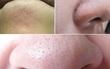 Những chấm li ti trên da ai cũng có: Cứ tưởng là mụn hóa ra không phải