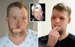 Video: Hành trình tìm lại cuộc sống của anh chàng bị mất nửa khuôn mặt