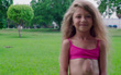 Sức sống kỳ diệu của bé gái có trái tim mọc ngoài lồng ngực