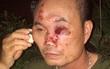 Hà Nội: Một bảo vệ khu đô thị Linh Đàm bị nhóm côn đồ hành hung trong đêm