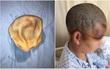 Trung Quốc: Bị máy giật tung cả mảng da đầu, nữ công nhân phải khâu hơn 200 mũi