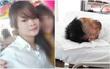 Thương tâm thiếu nữ 17 tuổi bị tạt axit hủy hoại dung nhan trên đường tan ca làm trở về