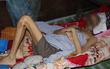 Người đàn ông bị bệnh Cam Tẩu Mã ăn hết khuôn mặt đã qua đời