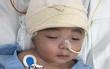 Một ngày sau cuộc tiểu phẫu, em bé não úng thủy Phạm Đức Lộc đã biết mở mắt, cử động tay chân