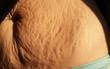 Cận cảnh sức tàn phá khủng khiếp của việc sinh con đến cơ thể người mẹ