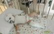 Đi du lịch, bị nước sôi đổ trúng người, bé trai 17 tháng không còn khả năng nói và đi lại