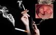5 thói quen dễ dẫn đến ung thu vòm họng mà chúng ta vẫn hồn nhiên làm hàng ngày