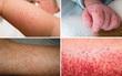 Hướng dẫn của Bộ Y tế: Những dấu hiệu sốt xuất huyết cần nhập viện ngay