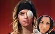 Thí sinh Hoa hậu Ý công khai gương mặt bị hủy hoại do bạn trai cũ tạt axit