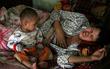 Nghẹn lòng cảnh đứa trẻ khát sữa nhìn chằm chằm ngực sưng tấy của mẹ vì bị ung thư vú trong gia đình có tới 4 người mù