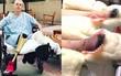 Sử dụng băng vệ sinh sai cách, người phụ nữ suýt nữa mất mạng, phải cắt bỏ cả 2 chân vì đau đớn
